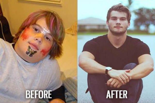 Síndrome de Patito Feo Antes y Después (48)