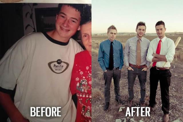 Síndrome de Patito Feo Antes y Después (46)