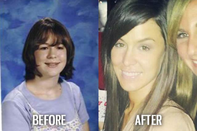 Síndrome de Patito Feo Antes y Después (45)