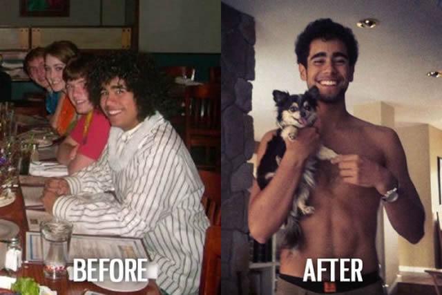 Síndrome de Patito Feo Antes y Después (44)