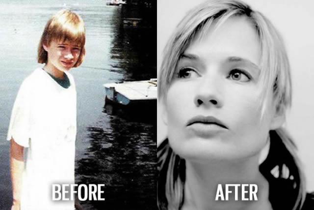Síndrome de Patito Feo Antes y Después (43)