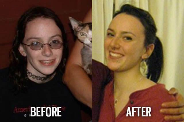Síndrome de Patito Feo Antes y Después (41)