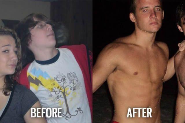 Síndrome de Patito Feo Antes y Después (39)