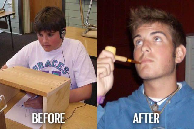 Síndrome de Patito Feo Antes y Después (38)