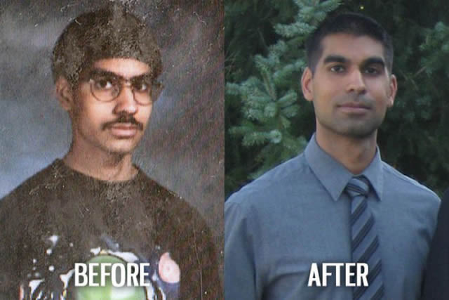 Síndrome de Patito Feo Antes y Después (36)