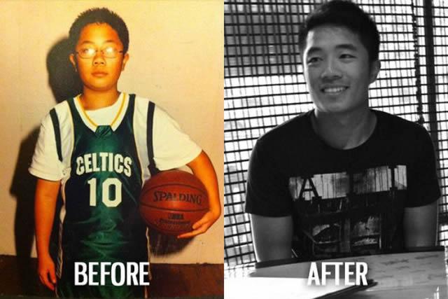 Síndrome de Patito Feo Antes y Después (35)