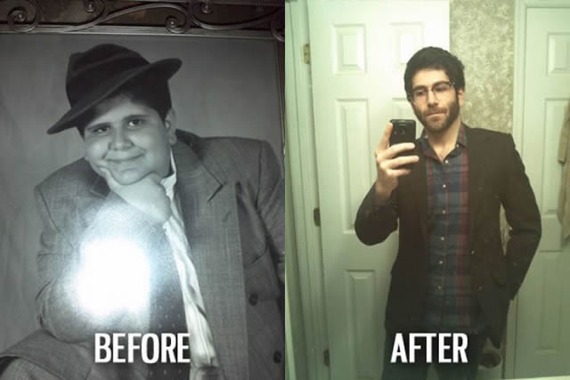 Síndrome de Patito Feo Antes y Después (34)
