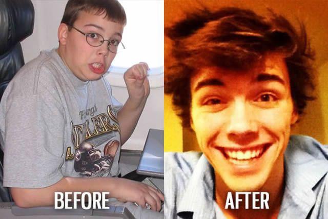 Síndrome de Patito Feo Antes y Después (33)