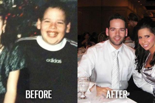 Síndrome de Patito Feo Antes y Después (32)