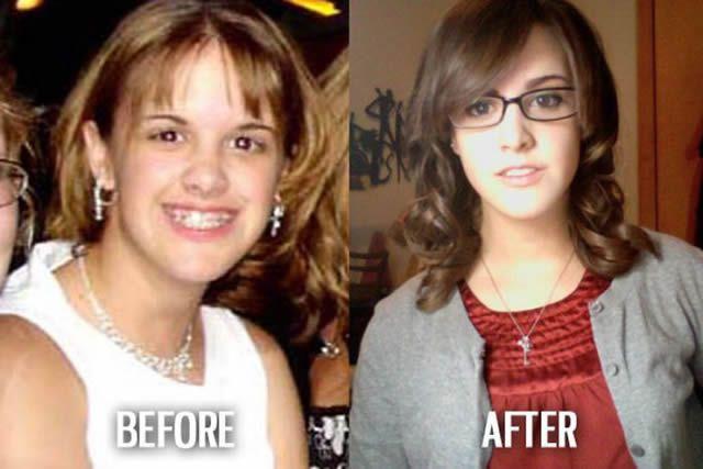 Síndrome de Patito Feo Antes y Después (31)