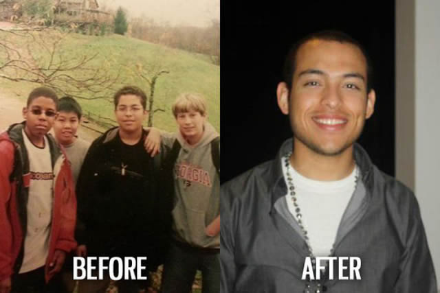 Síndrome de Patito Feo Antes y Después (30)