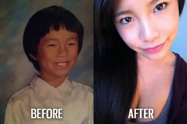 Síndrome de Patito Feo Antes y Después (29)