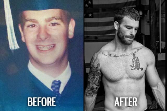 Síndrome de Patito Feo Antes y Después (26)