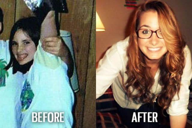 Síndrome de Patito Feo Antes y Después (25)
