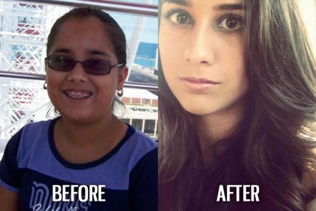 Síndrome de Patito Feo Antes y Después (24)