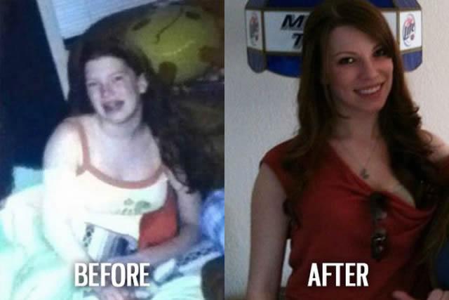 Síndrome de Patito Feo Antes y Después (23)