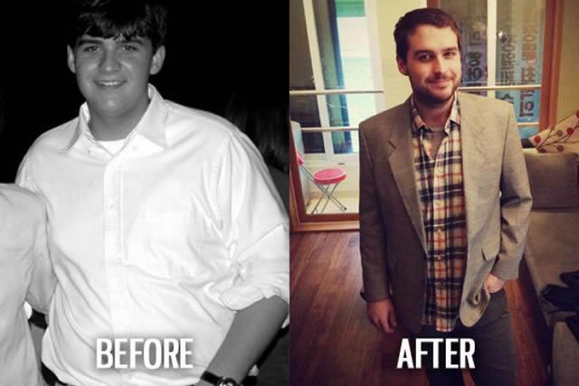 Síndrome de Patito Feo Antes y Después (22)
