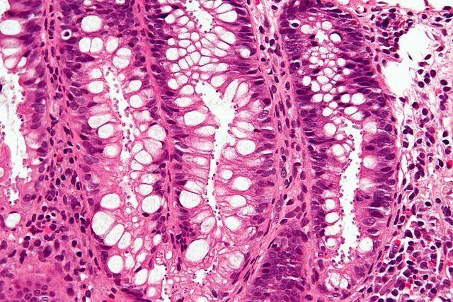 Criptosporidiosis