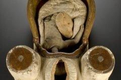 objetos médicos del pasado (6)