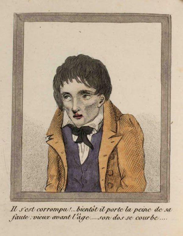 efectos del FAP ilustrados en un libro de 1830 (1)