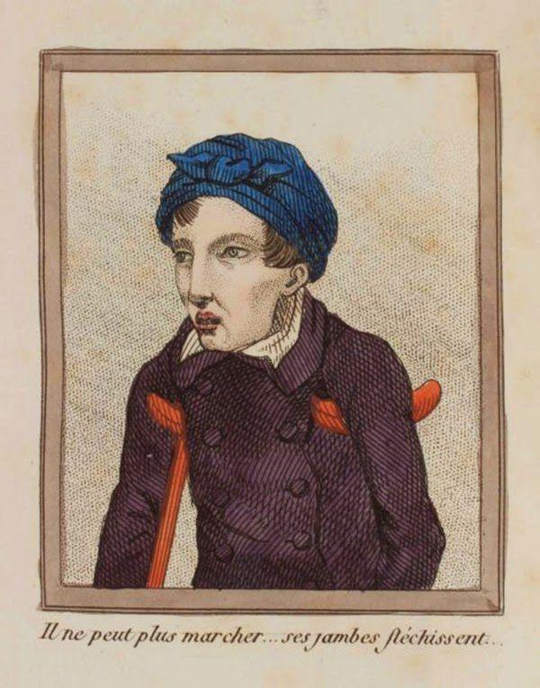 efectos del FAP ilustrados en un libro de 1830 (15)
