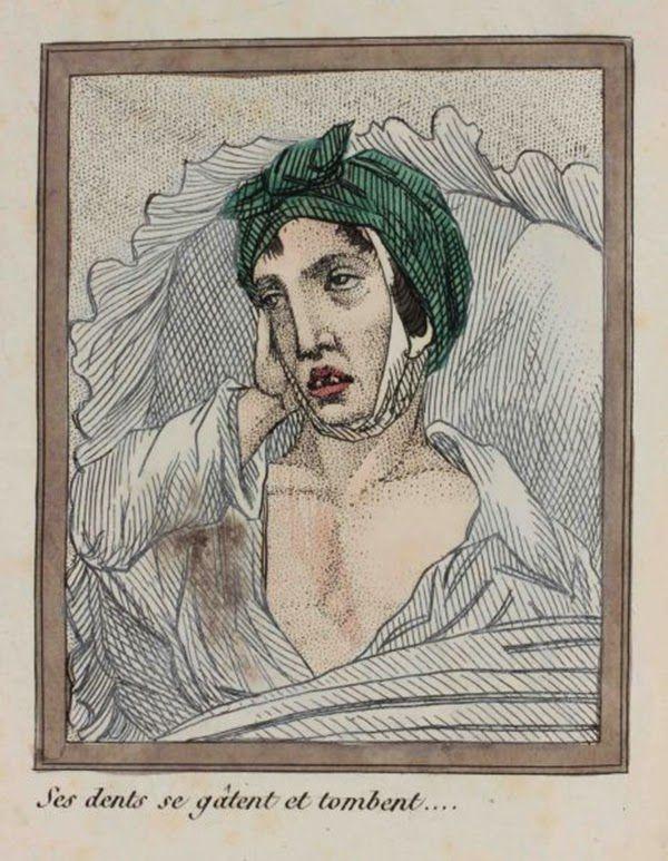 efectos del FAP ilustrados en un libro de 1830 (13)
