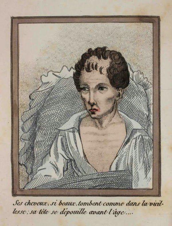 efectos del FAP ilustrados en un libro de 1830 (11)