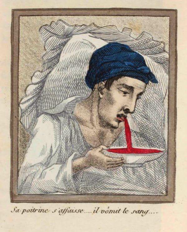 efectos del FAP ilustrados en un libro de 1830 (9)
