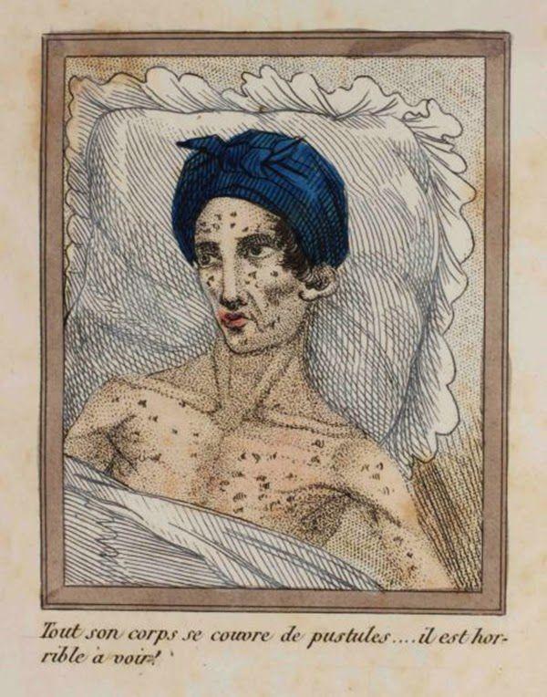 efectos del FAP ilustrados en un libro de 1830 (8)