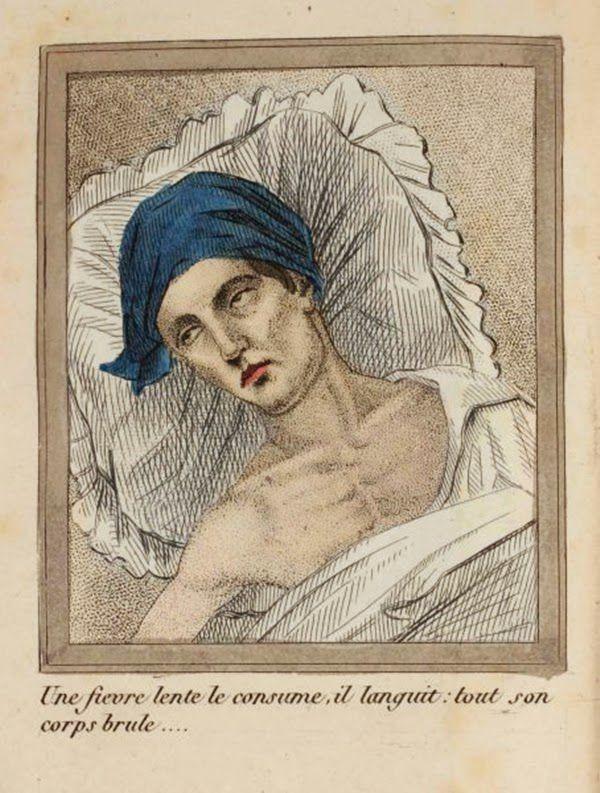efectos del FAP ilustrados en un libro de 1830 (7)
