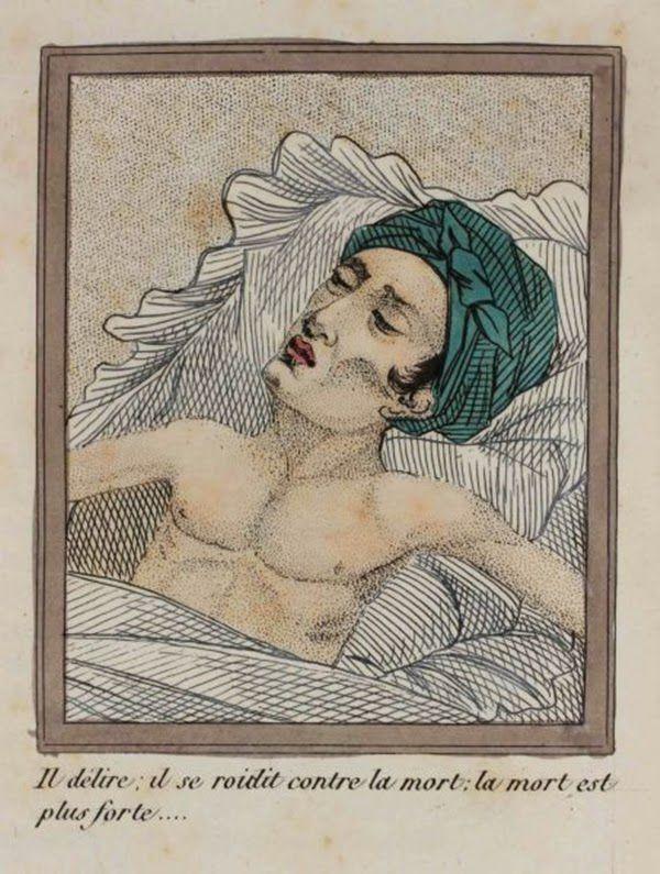 efectos del FAP ilustrados en un libro de 1830 (6)