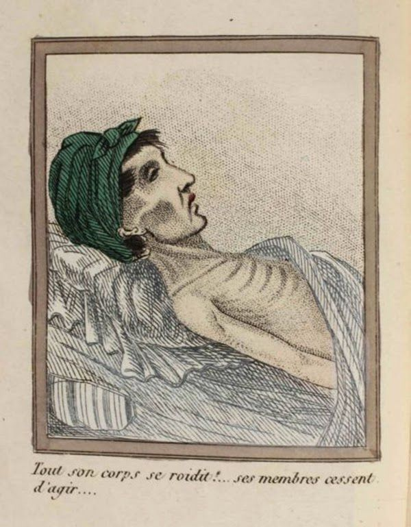 efectos del FAP ilustrados en un libro de 1830 (5)