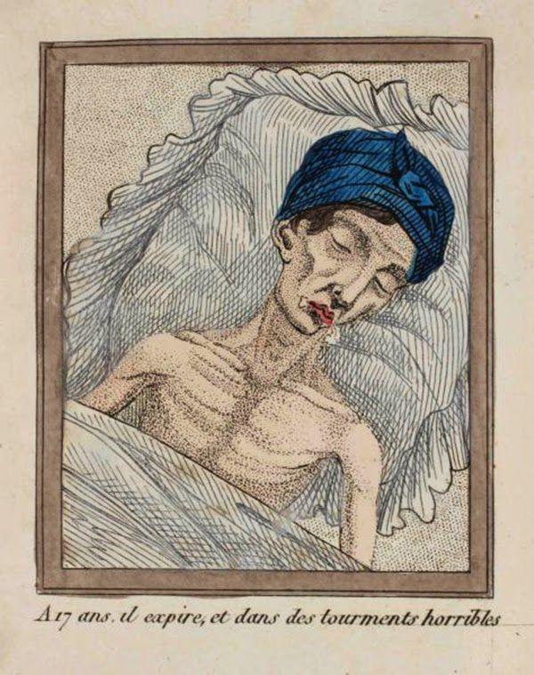 efectos del FAP ilustrados en un libro de 1830 (4)