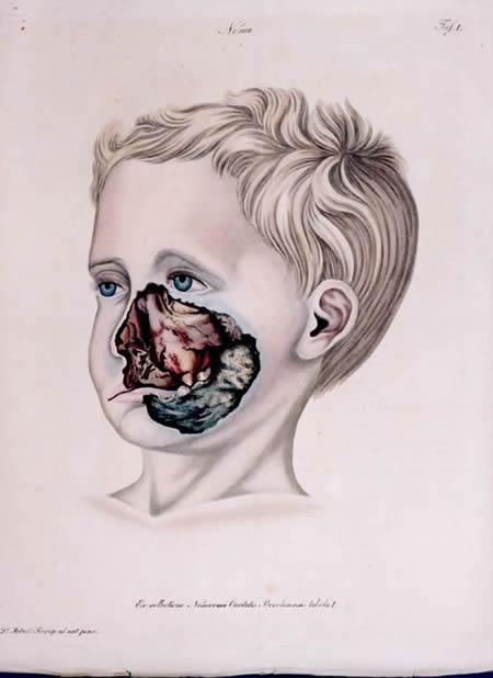 Estomatitis gangrenosa