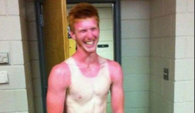 peores quemaduras solares (14)