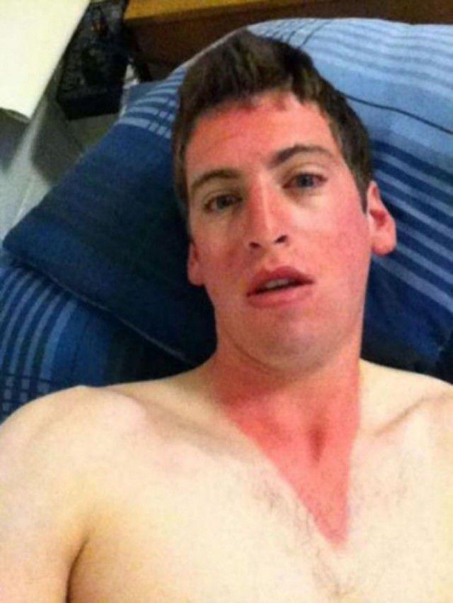 peores quemaduras solares (21)