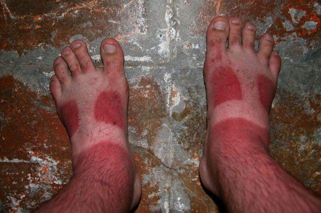 peores quemaduras solares (20)