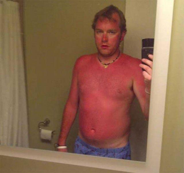 peores quemaduras solares (19)