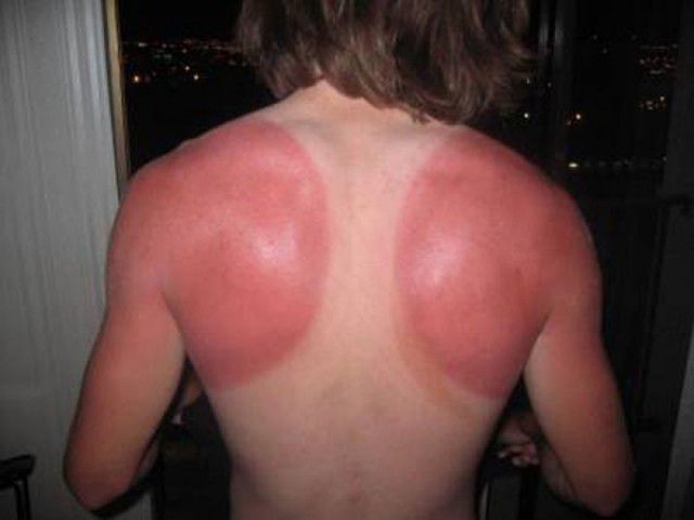 peores quemaduras solares (18)
