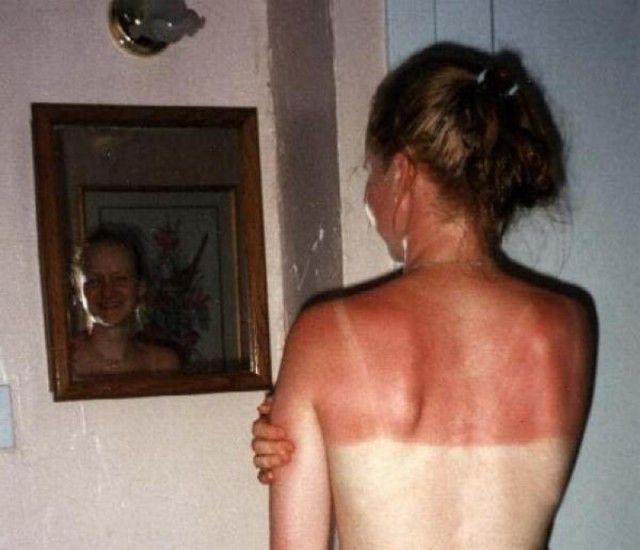 peores quemaduras solares (17)