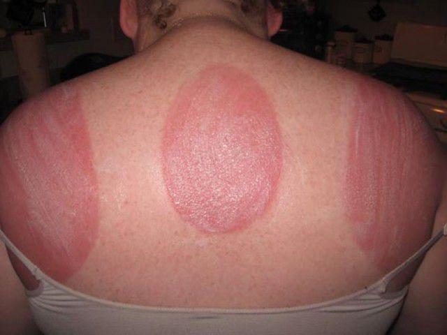 peores quemaduras solares (11)