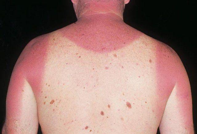 peores quemaduras solares (10)