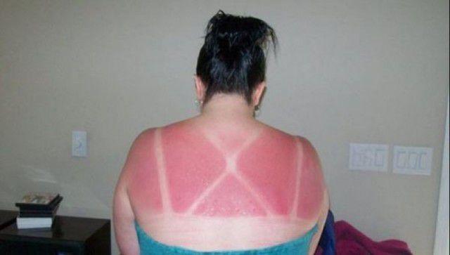 peores quemaduras solares (9)