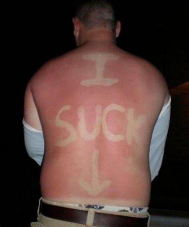 peores quemaduras solares (8)