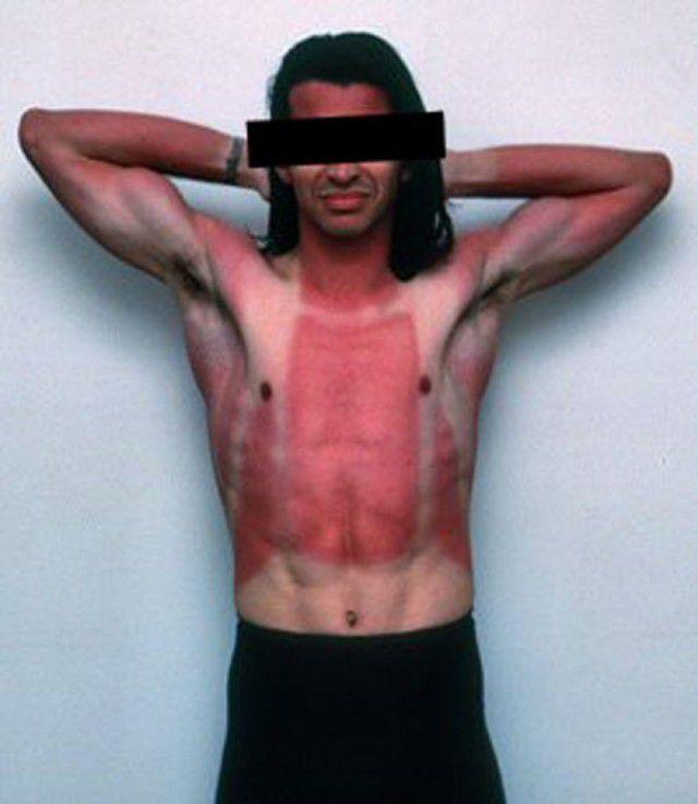 peores quemaduras solares (7)