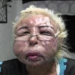 Hombre se inyecta aceite para bebé en el rostro y termina desfigurado