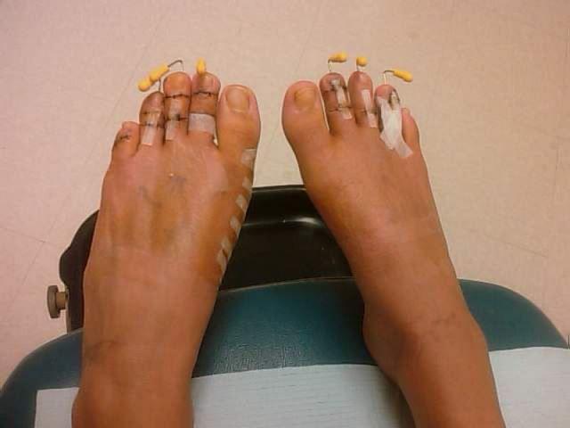 Cirugía Cenicienta pies (3)