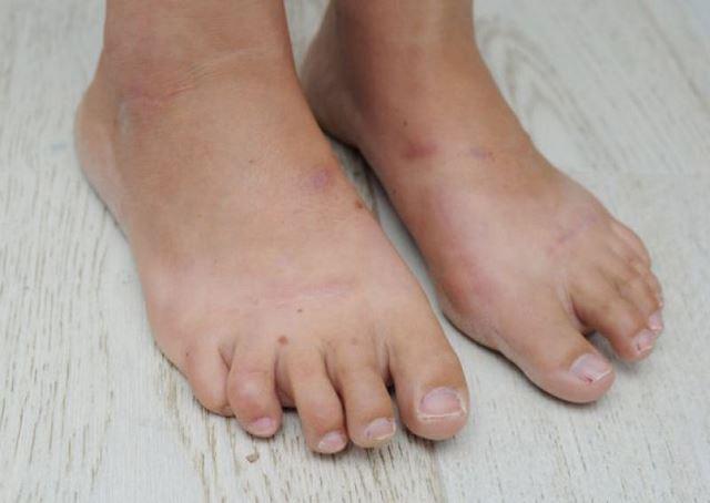 Cirugía Cenicienta pies (4)