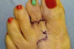 Cirugía Cenicienta pies (2)