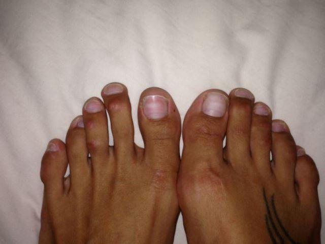 Cirugía Cenicienta pies (1)